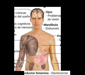 2000px-Sintomas_de_la_fibromialgia-es.svg